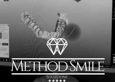 method smile
